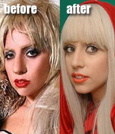 Lady Gaga prima dopo